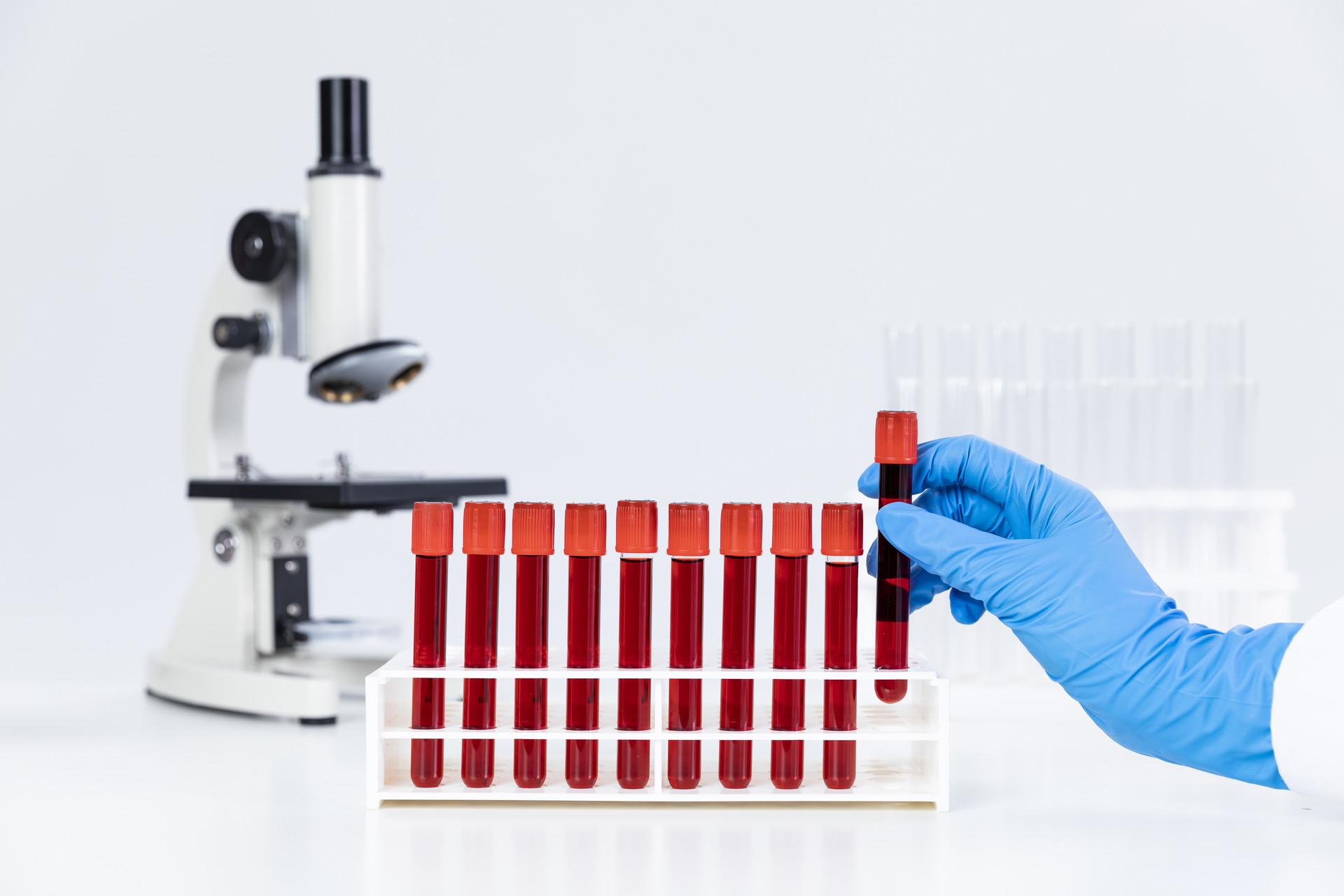 如何预防心脑血管疾病?控制血脂很重要!
